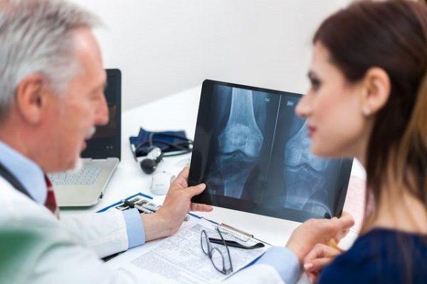 witamina C osteoporoza