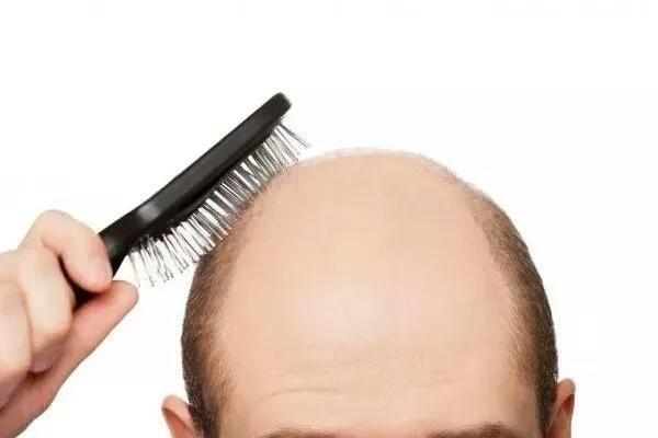 pierzga na wypadanie włosów