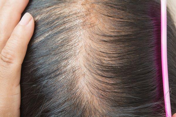 jakie domowe sposoby na porost włosów