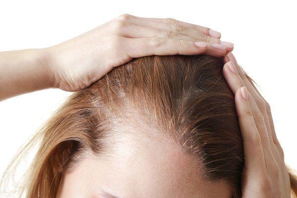 witaminy na wypadanie włosów