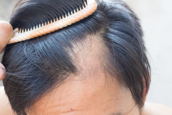 jak zapobiec wypadaniu włosów