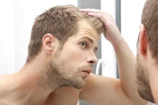 wypadające włosy u mężczyzn